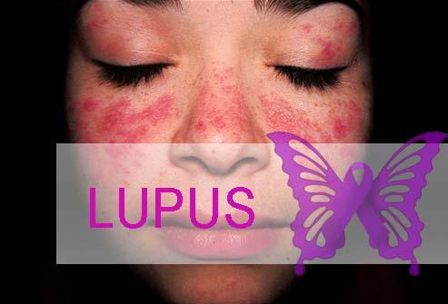 Lupus Penyakit Yang Menyerang Selena Gomez Hingga Cangkok Ginjal